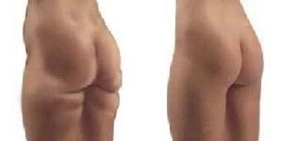 liposuccion fesses tunisie avant apres