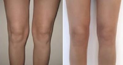 liposuccion genoux tunisie avant apres