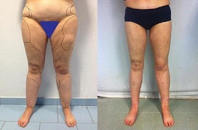 liposuccion jambes tunisie avant apres