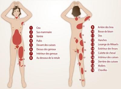 cout de la liposuccion