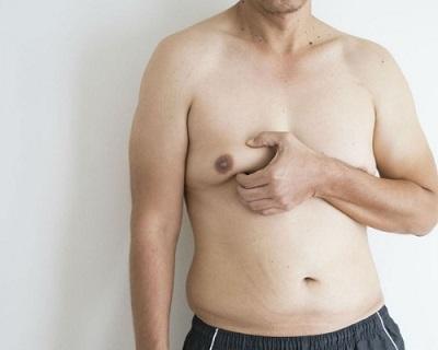 liposuccion poitrine pour hommes