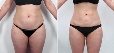 question avant liposuccion