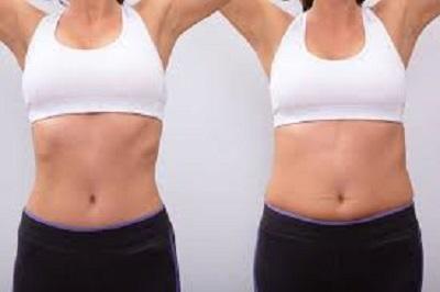 perdre du poids avant une liposuccion
